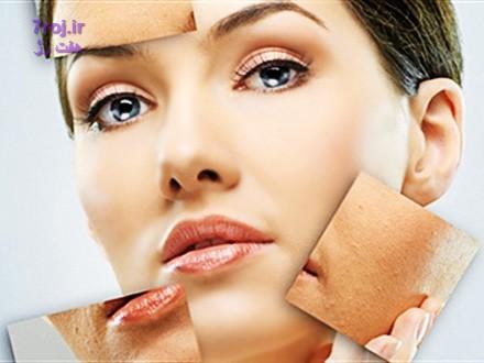ماسک و لوسیون گیاهی برای پوست