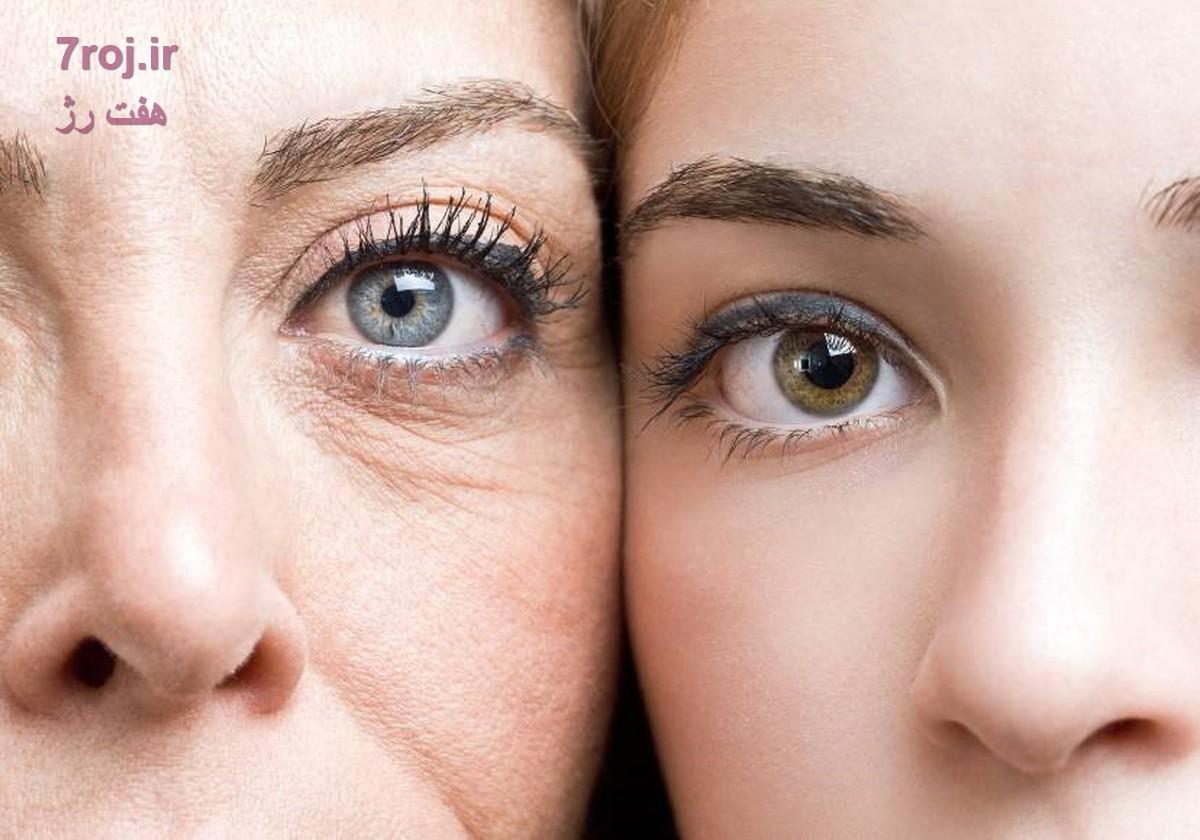 فواید مصرف کرم دور چشم