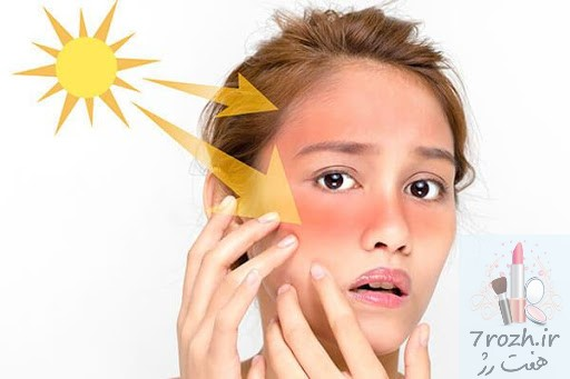 ۵ نکته کرم ضد آفتاب